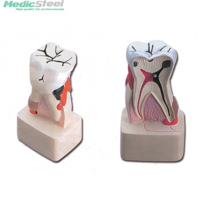 DENTAL PATHOLOGY MODEL
